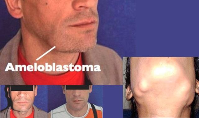 آملوبلاستوما: تومور خوش خیم ولی سمج فک