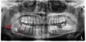 کیست وسیع به دلیل دندان عقل نهفته