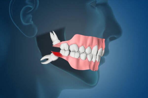 جراحی دندان عقل نزدیک عصب