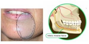 بی حسی لب و چانه بعد جراحی دندان عقل