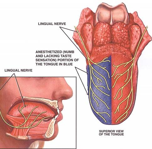 بی حسی زبان بعد از جراحی دندان عقل