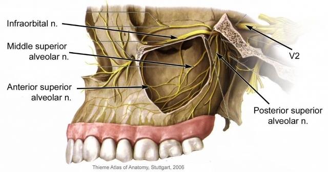 باز شدن سینوس حین کشیدن دندان: علت و درمان