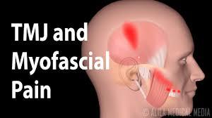 درد مفصل فک