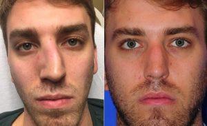 قبل و بعد جا انداختن شکستگی بینی