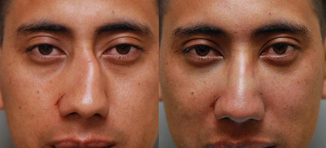 درمان شکستگی بینی: جا انداختن، جراحی