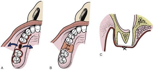 بستن ارتباط سینوس دهان با بخیه
