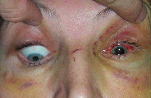 شکستگی کاسه چشم که باعث گیر افتادن چشم شده