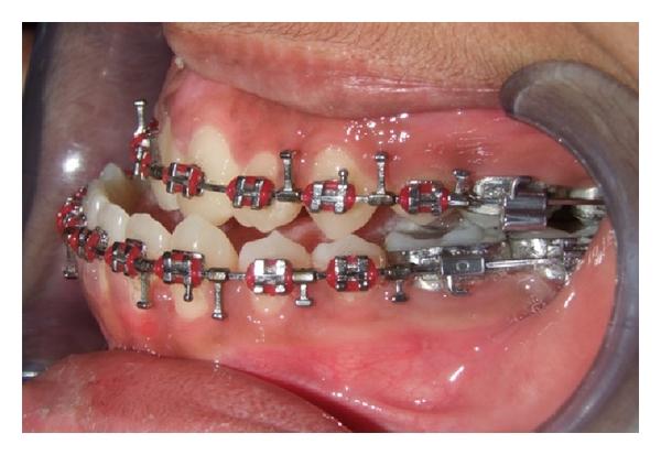 درمان ارتودنسی قبل از جراحی فک