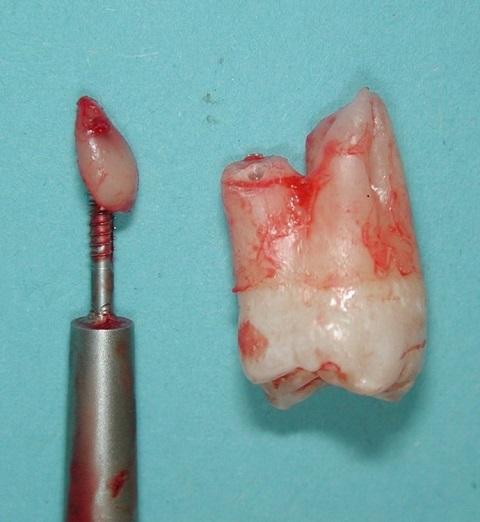 شکستن ریشه دندان موقع کشیدن و باقی ماندن ریشه