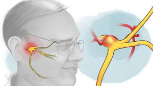 نورالژی عصب سه قلو