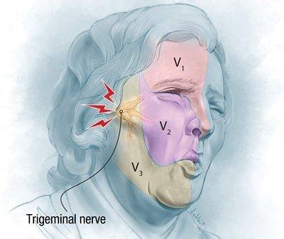نورالژی عصب سه قلو (تری ژمینال): تشخیص علت و درمان
