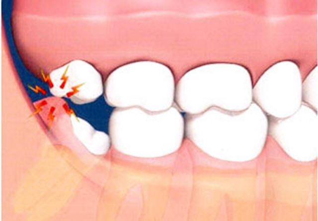 چرا باید دندان عقل کشیده شود؟ عوارض باقی ماندن دندان عقل