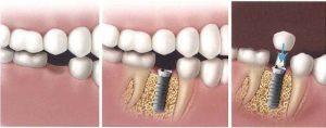 مراحل ایمپلنت و کاشت دندانی