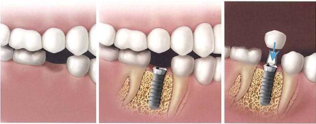 ایمپلنت بهترین روش جایگزینی دندان کشیده شده
