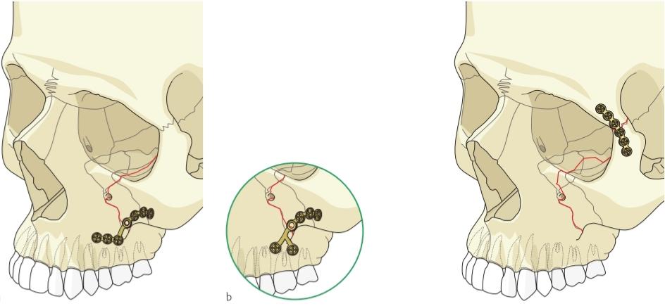 درمان جراحی شکستگی گونه