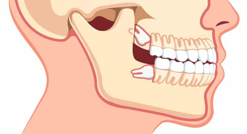 نکات مهم جراحی دندان عقل نهفته