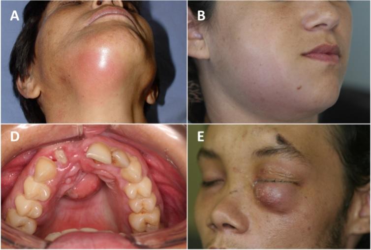 آبسه فک و صورت: علت و درمان