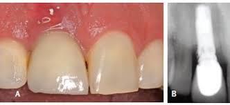 همه چیز در مورد عفونت ایمپلنت دندان