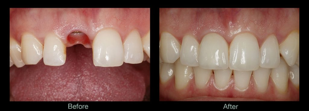 Implant-before-and-after