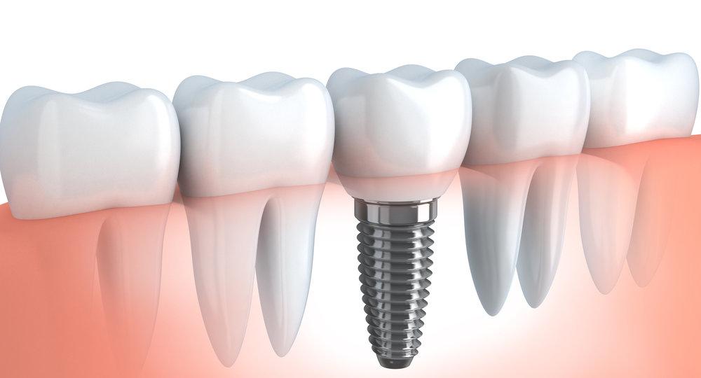 dental_impant_2