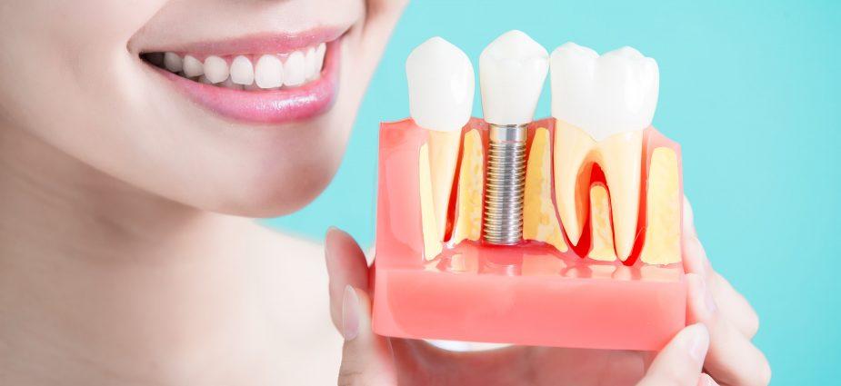 dental_implant_1
