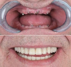 ایمپلنت و کاشت دندان در فرد کاملا بی دندان