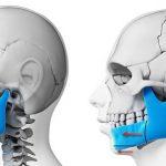 اقدامات قبل و بعد از جراحی فک-آمادگی برای جراحی فک